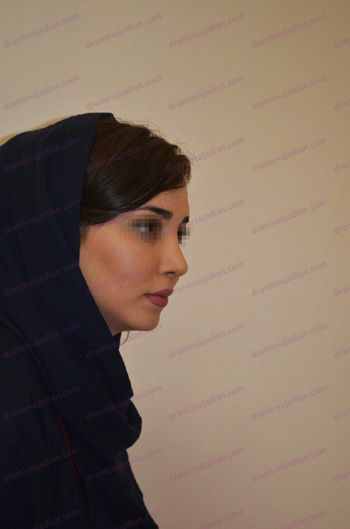 Rhinoplasty in Iran - 2