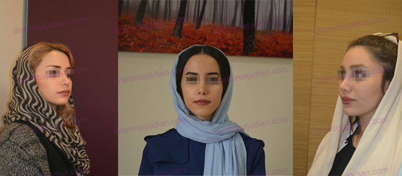 Rhinoplasty in Iran - 3
