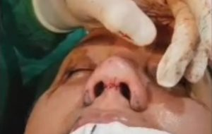Defattening and alar rim resection in thick skin