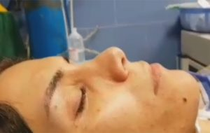 Revision Rhinoplasty And Augmentation With Dice Cartilage