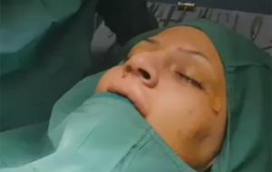 Thick skin patient from sweden whom has come to us for rhinoplasty