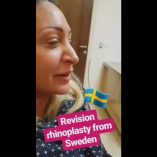 Revision rhinoplasty from sweden